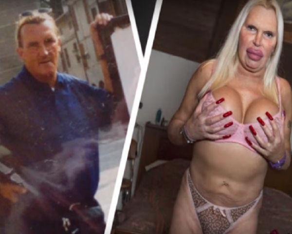 Transgender Woman Spends 76, 000 On Plastic Surgery
